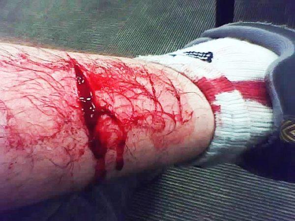 Les hémorragies